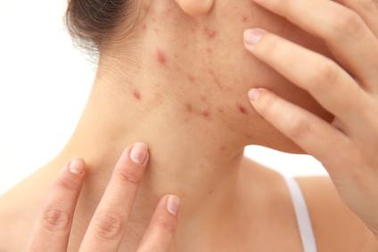 Akne kann auch im Alter auftreten
