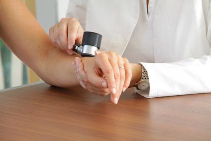 Die Hautkrebsvorsorge findet mit nicht-invasiven Hilfsmitteln statt