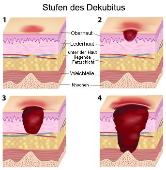 Der Hautarzt unterscheidet vier Stufen des Dekubitus