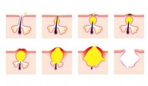Vermehrte Talgabsonderung ist gemäss Dermatologe der Hauptgrund für Akne