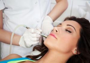 Ihr Dermatologe kann eine schwere Akne auch mit einer Lasertherapie behandeln