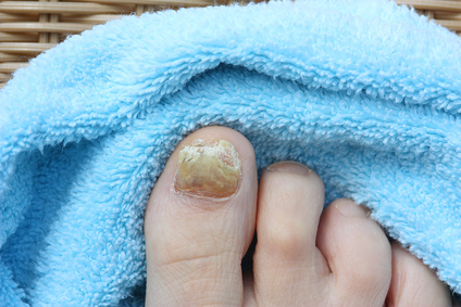 Der Dermatologen diagnostiziert Nagelpilz