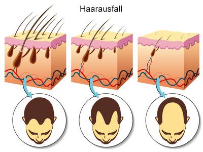 Der Dermatologe unterscheidet verschiedene Stadien des erblichen Haarausfalls
