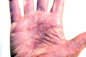 Geschwächte Haut führt gemäss Dermatologen zu einem Handekzem
