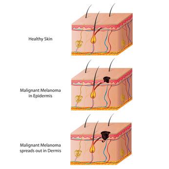 Verschiedenen Stadien des schwarzen Hautkrebses