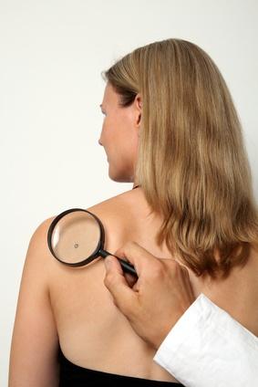Gehen Sie zum Facharzt für Dermatologie, wenn Sie einen auffälligen Hautfleck sehen
