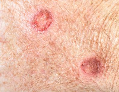 Rote Knoten weisen den Dermatologen auf Stachelzellkrebs hin