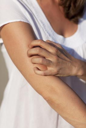 Juckreiz (Pruritus) definieren Dermatologen als Sinnesempfindung, die zum Kratzen führt