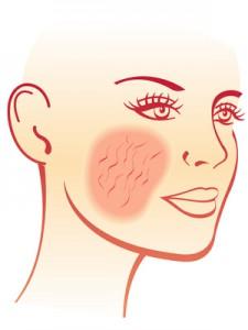 Der Dermatologe erkennt Rosacea an erweiterten Äderchen