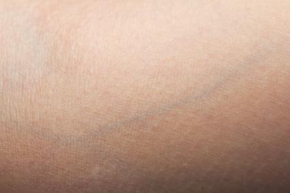 Der Hautarzt kann die Symptome lindern